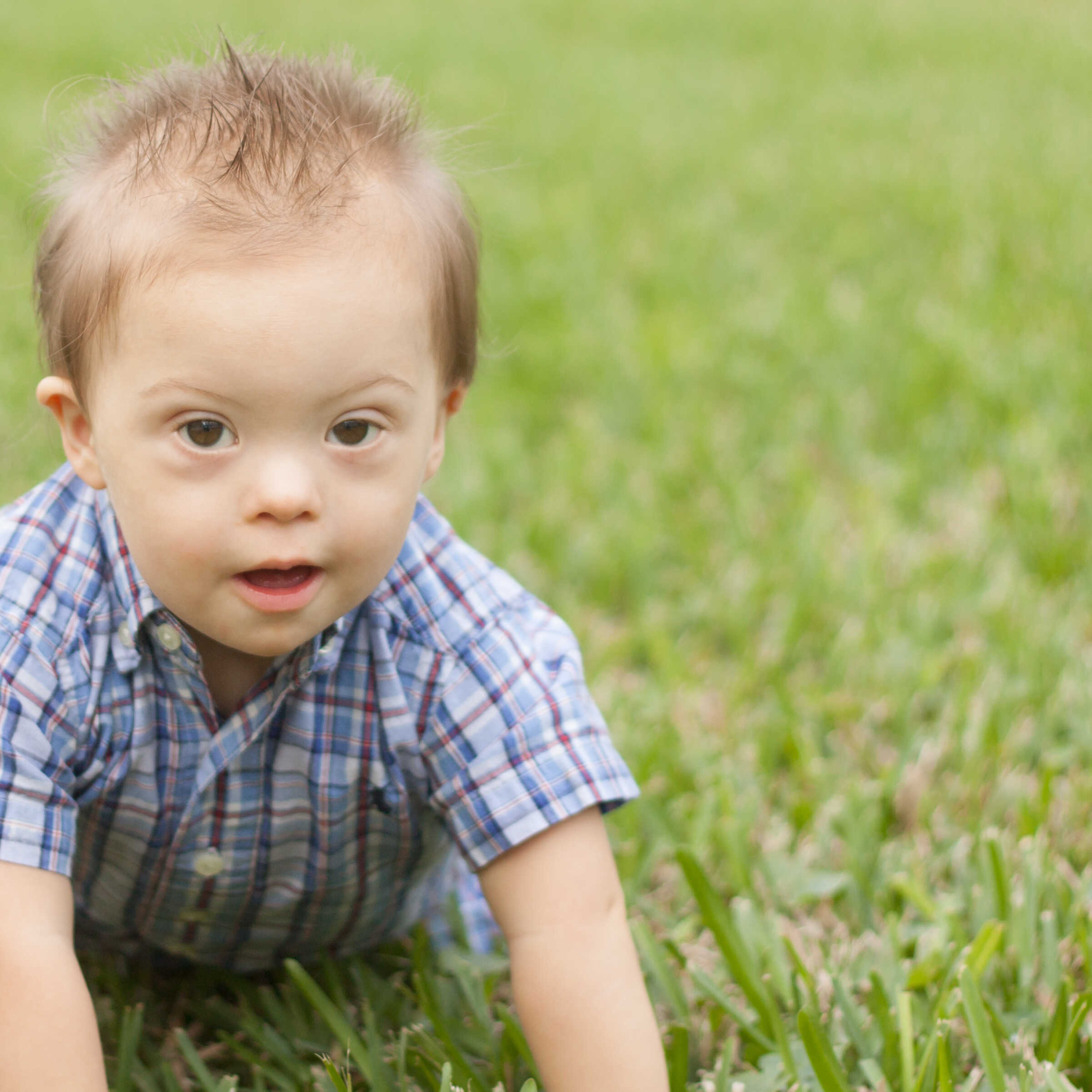 Down syndrome speech therapy Fort Myers